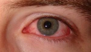 красные глаза после алкоголя
