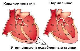 действие алкогольных напитков на сердце