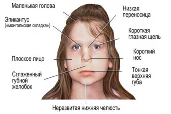 Фетальный алкогольный синдром