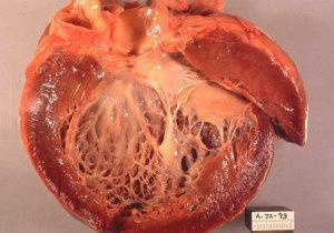 алкогольная кардиомиопатия симптомы