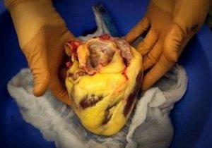 алкогольная кардиомиопатия смерть
