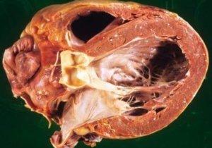 кардиомиопатия алкогольная симптомы