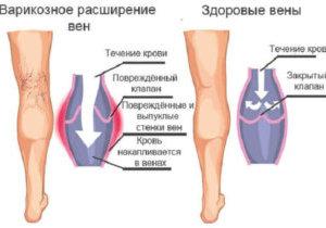 почему у алкоголиков болят ноги
