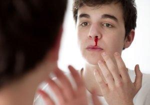 кровь из носа после пьянки
