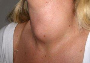 как влияет алкоголь на щитовидную железу
