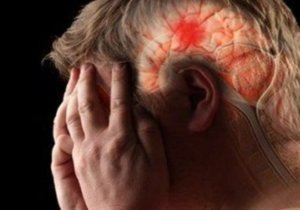 отек мозга от алкоголя