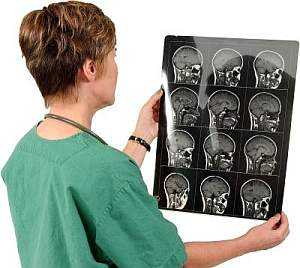 отек мозга после алкоголя